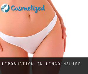 Liposuction in Lincolnshire