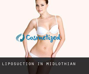 Liposuction in Midlothian