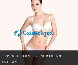 Liposuction in Northern Ireland