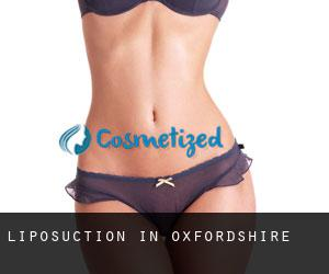 Liposuction in Oxfordshire