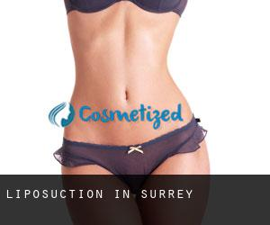 Liposuction in Surrey
