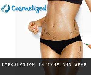 Liposuction in Tyne and Wear