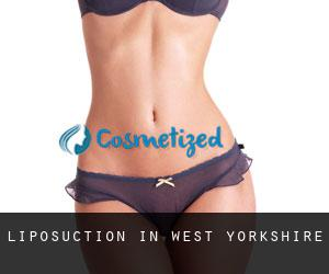 Liposuction in West Yorkshire