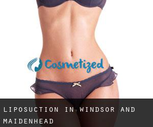 Liposuction in Windsor and Maidenhead