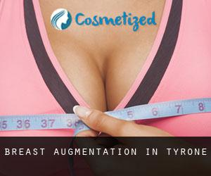 Breast Augmentation in Tyrone