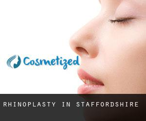 Rhinoplasty in Staffordshire