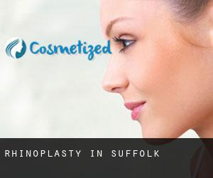 Rhinoplasty in Suffolk