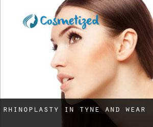 Rhinoplasty in Tyne and Wear