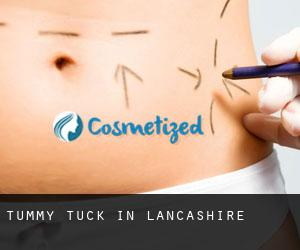 Tummy Tuck in Lancashire